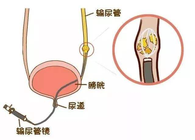 雅安结石病治疗6