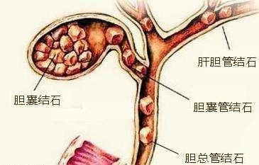 胆囊结石的症状