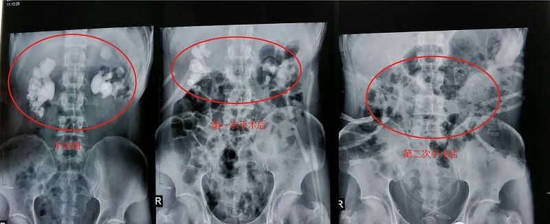 肾结石对比
