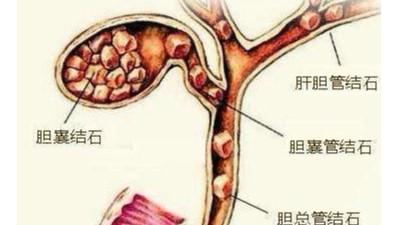 胆囊结石可以不切胆吗?