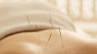 中医针灸理疗的好处是什么?